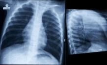 Asthma 101